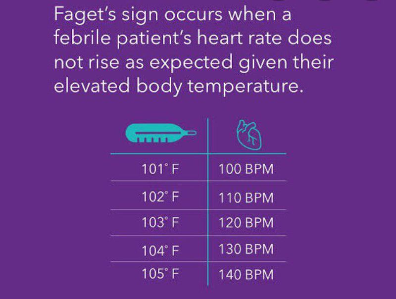Faget sign- fever with bradycardia( fever is usually accompanied with tachycardia)