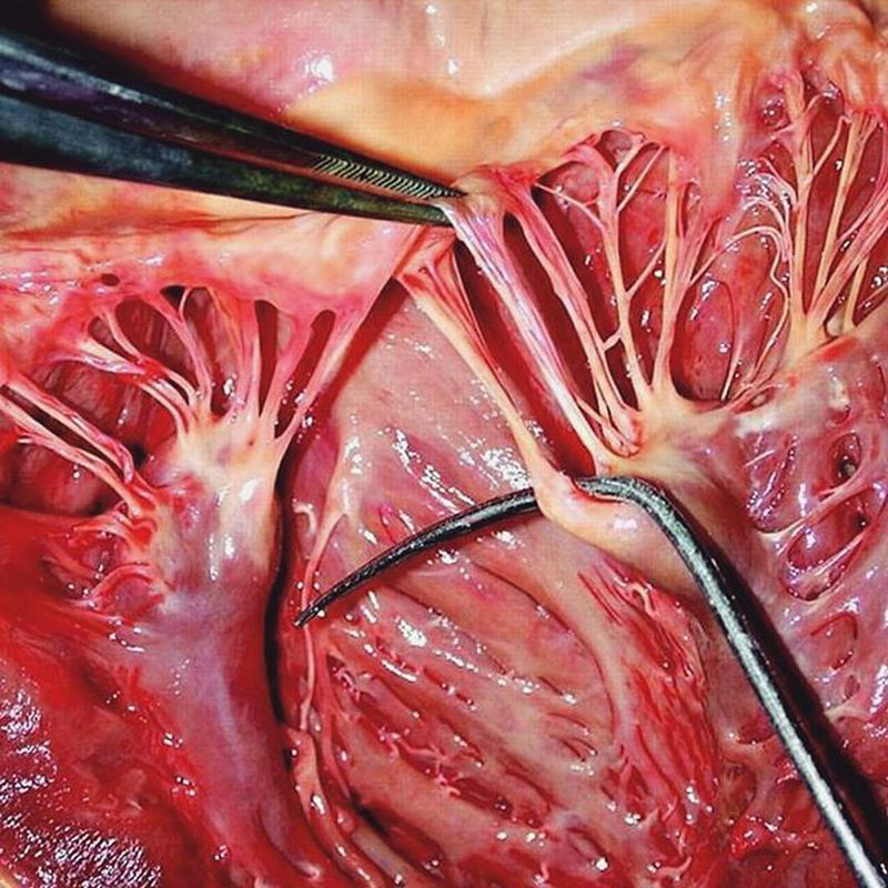 Chordae tendinea and papillary muscle