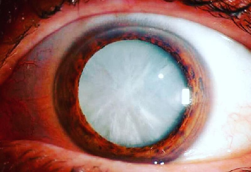 Dense white mature cataract