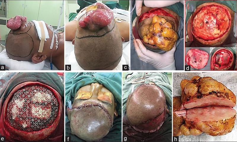 Cranioplasty and reconstruction