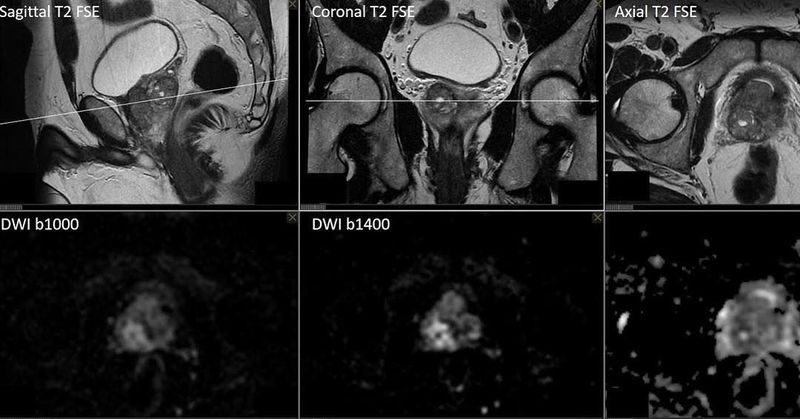 Multiparametric MR Imaging of the prostate gland