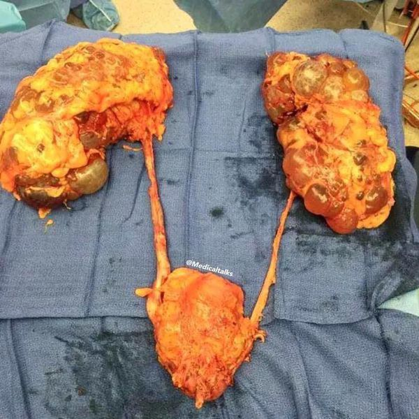 The urinary system removed in its whole!!