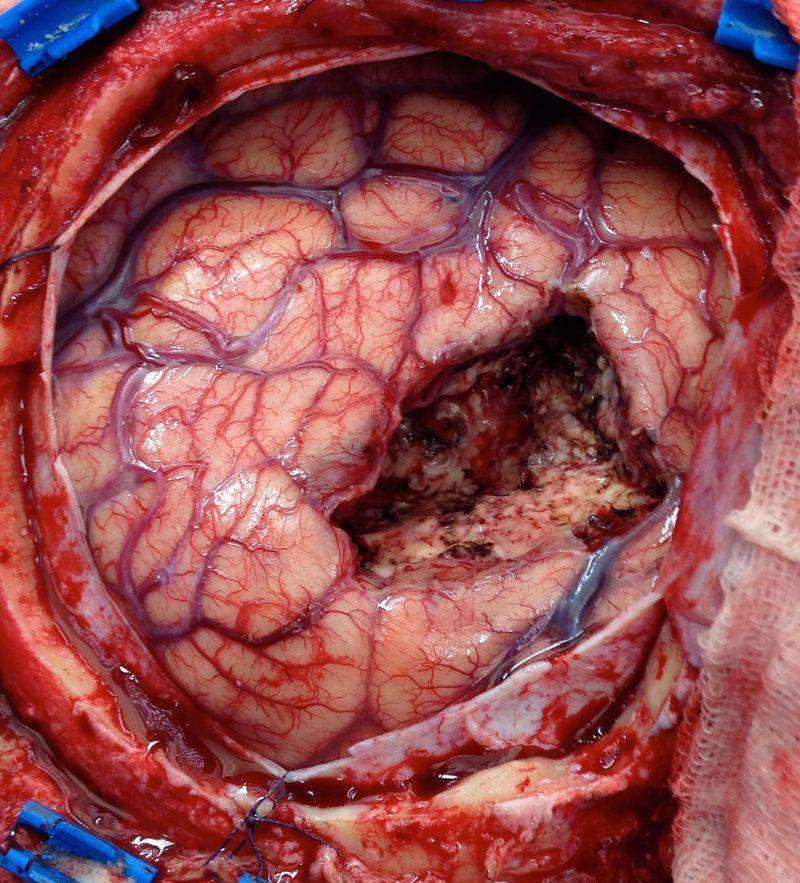 CEREBRAL AVM (AVM-Arteriovenous malformation Arteriovenous malformation)
