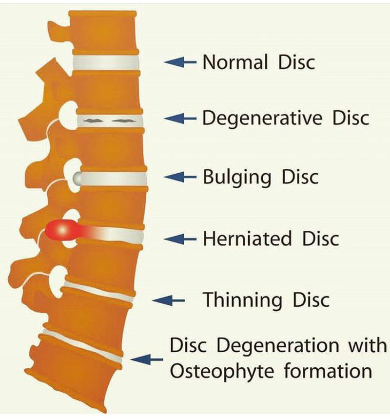 Types of disc