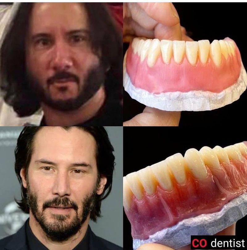 Teeth determine shape of face