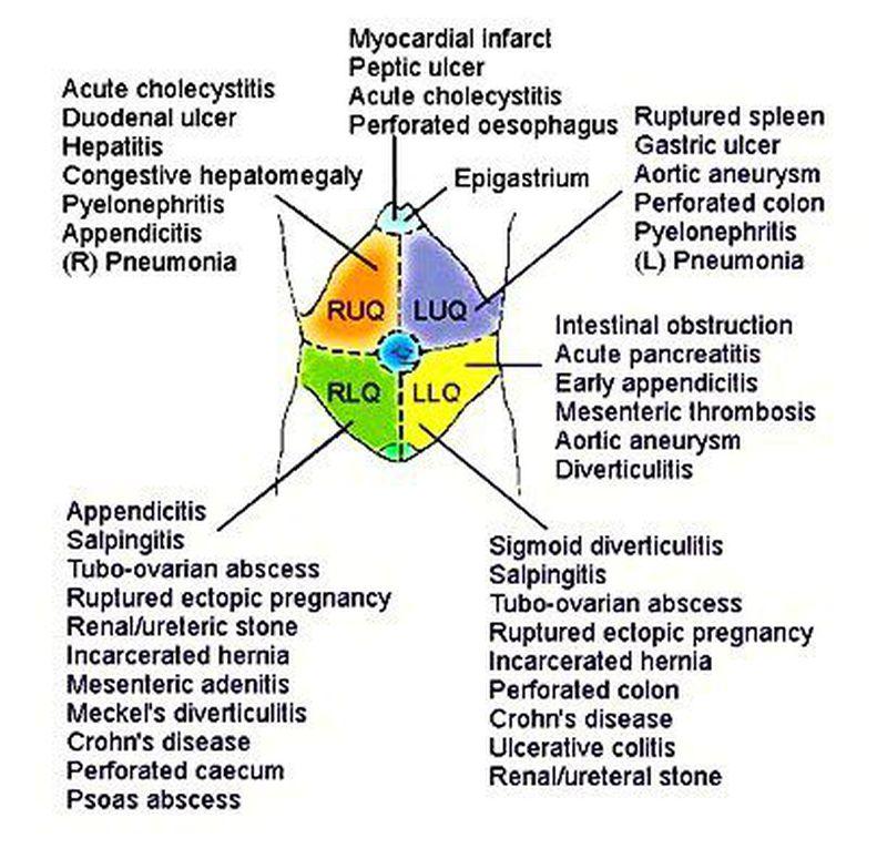 Differential diagnosis of abdominal quadrants