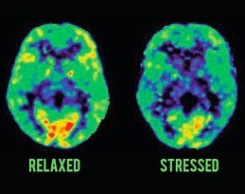 Relaxed vs. Stressed brain