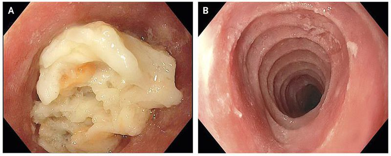 "Trachealization"" of the Esophagus"