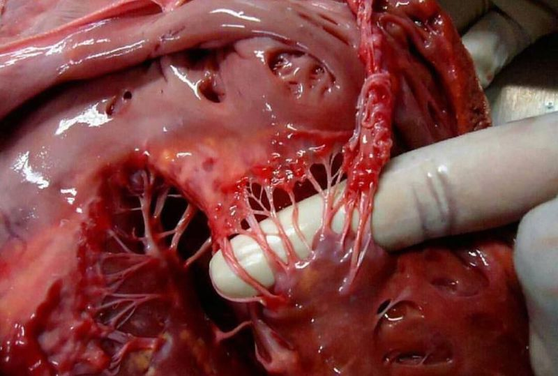 Say hello to chordae tendinea and papillary muscle