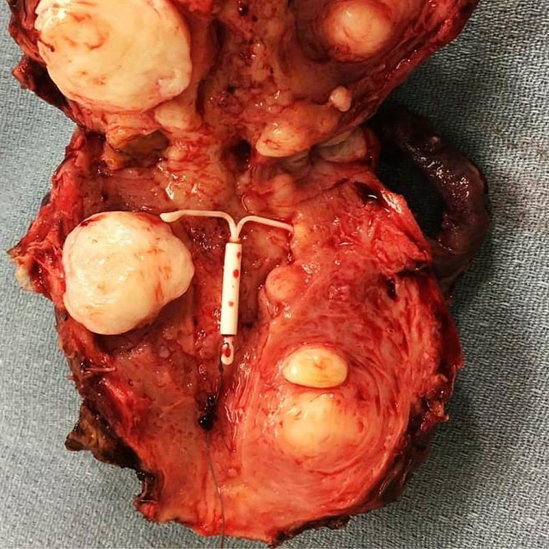 Multiple uterine myomas of different sizes! Who knows what's the device at the center?