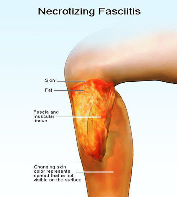 pictures of early necrotizing fasciitis - 600×670