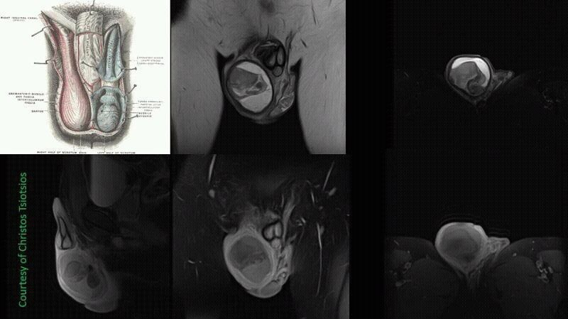 High-resolution scrotum MR Imaging