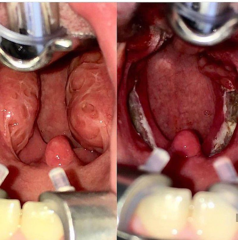 Tosillectomy before and after