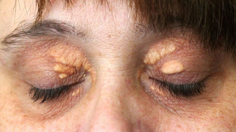 Removal Options for Xanthelasma