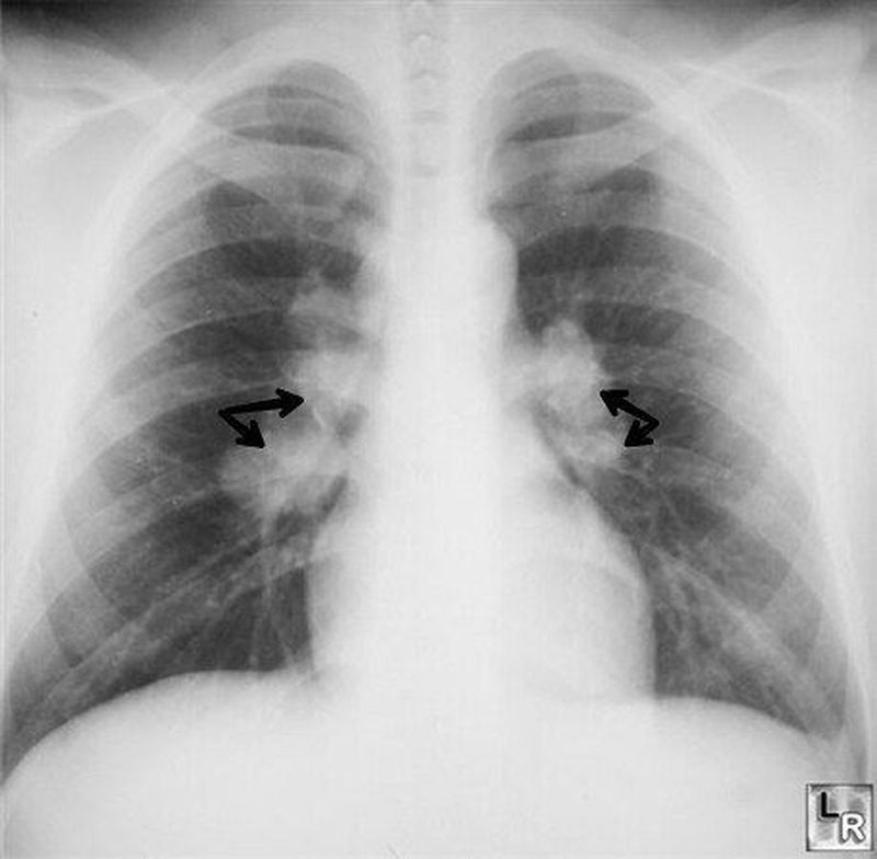 This Chest radiograph shows eggshell calcification of the hilar lymph node as seen in Silicosis