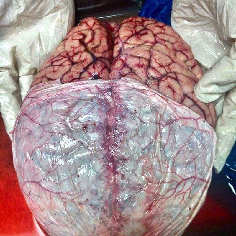 Human Brain, Enclosed in Dura mater