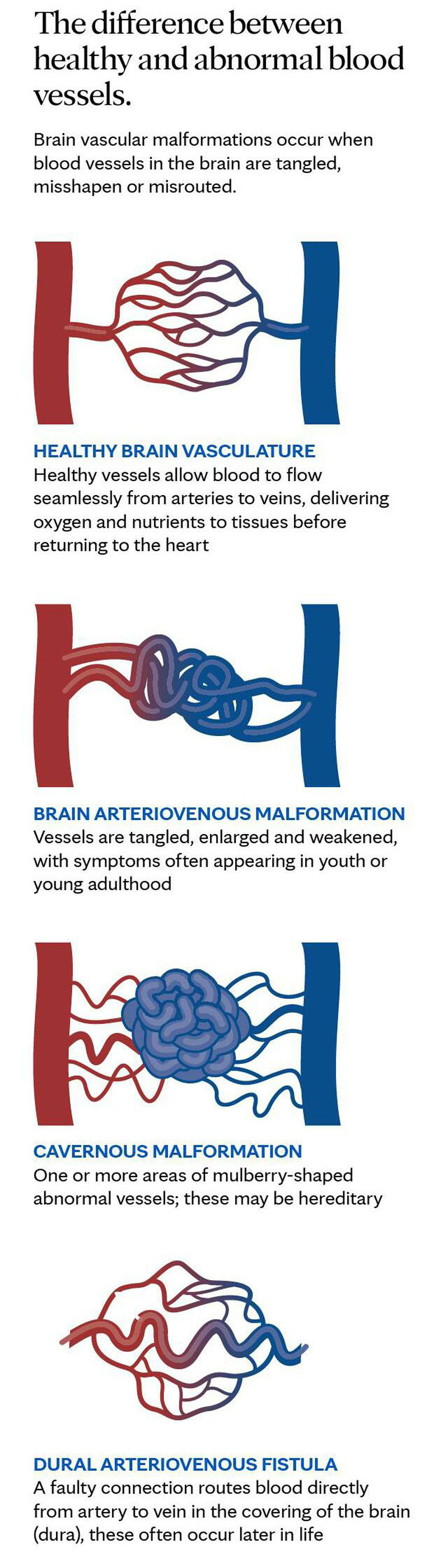 The differenec between healty and abnormal blood vessels..❤❤
