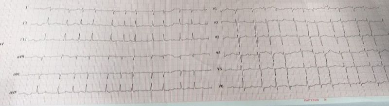 What's your diagnosis? What do you suggest for management?
