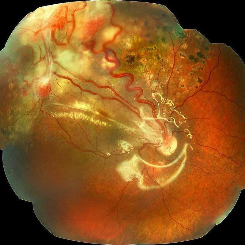 Von hippel lindau syndrome