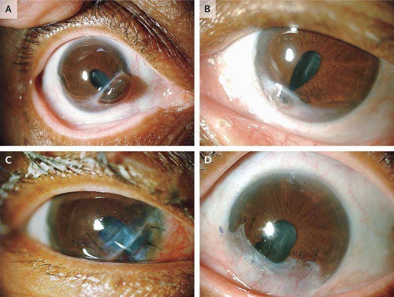Bilateral Corneal Perforation