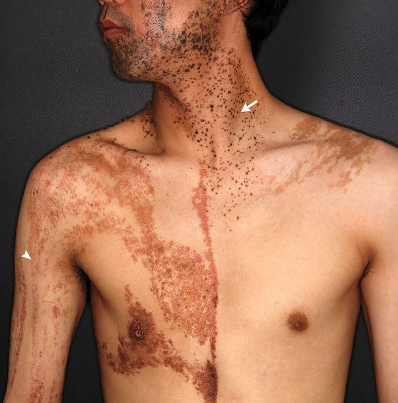 A 37-year-old man was referred to the dermatology clinic for evaluation of skin lesions that had been present since birth. On physical examination, two types of lesions were observed: brownish hyperkeratotic papules following Blaschko's lines (arrowhead) and pigmented papules distributed in a segmental pattern (arrow). Biopsy specimens obtained from the right arm and the left side of the neck indicated that the hyperkeratotic papules were sebaceous nevi and the pigmented papules intradermal melanocytic nevi. An additional biopsy specimen obtained from a lesion on the right forearm (not shown) revealed squamous-cell carcinoma. Genetic testing was performed on both types of nevi and revealed the sameHRASc.181C→A (p.Gln61Lys) mosaic mutation in both samples. A diagnosis of phakomatosis pigmentokeratotica was made. Owing to the increased risk of cancer involving the skin and other organs that is associated with this rare disorder, regular surveillance and cancer screening are important. The patient underwent complete excision of the squamous-cell carcinoma. He remains under regular surveillance.