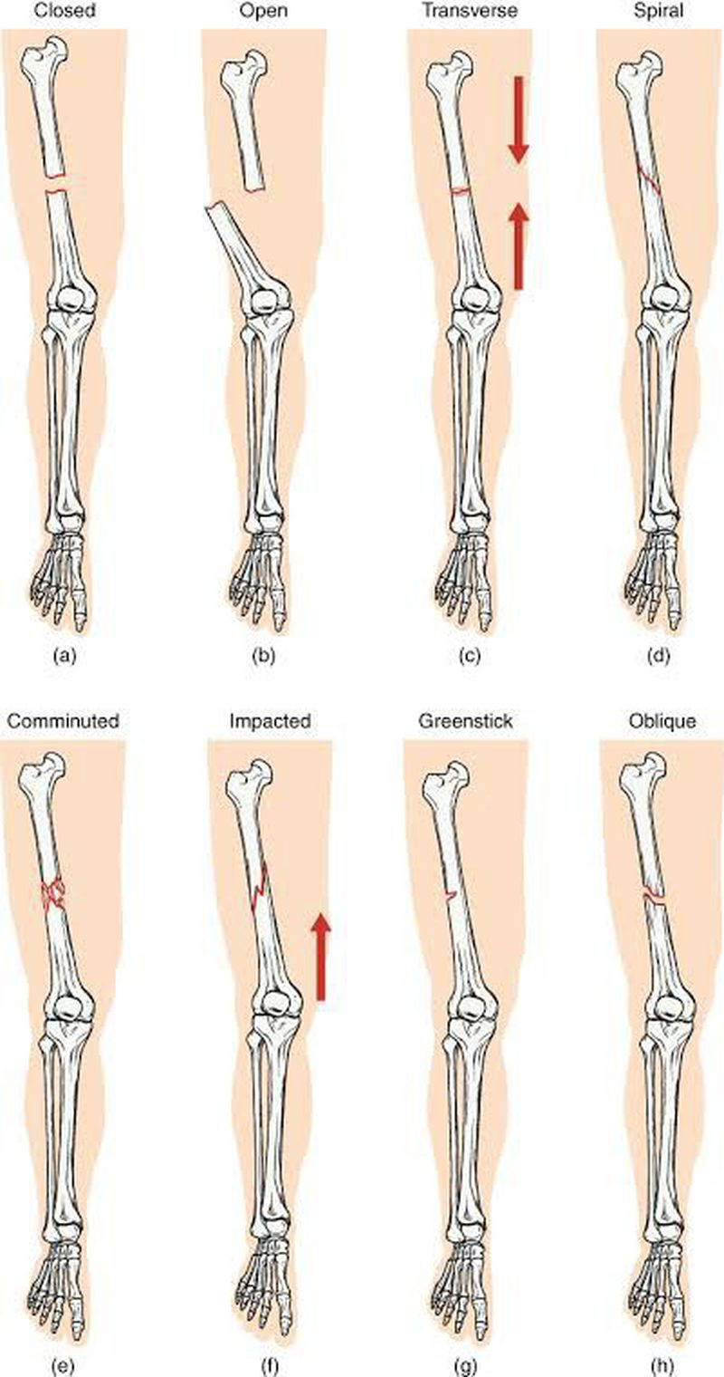 Fracture of limb