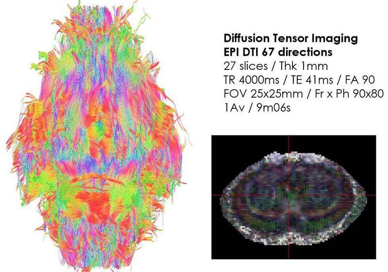 Diffusion tensor imaging of the rat brain at 7 Tesla!