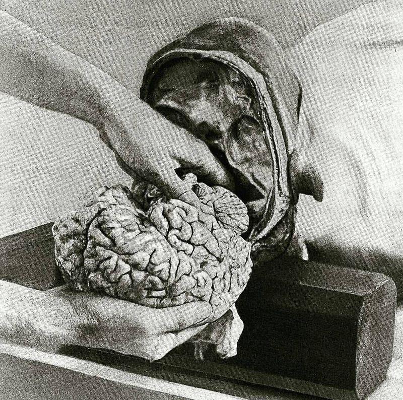 Brain removal