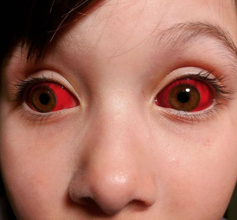Interesting case of a child having red eyes due to subconjuctival hemorrhage.