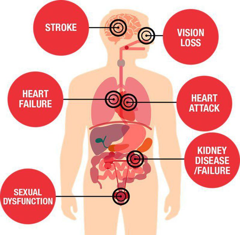 Hypertension effects