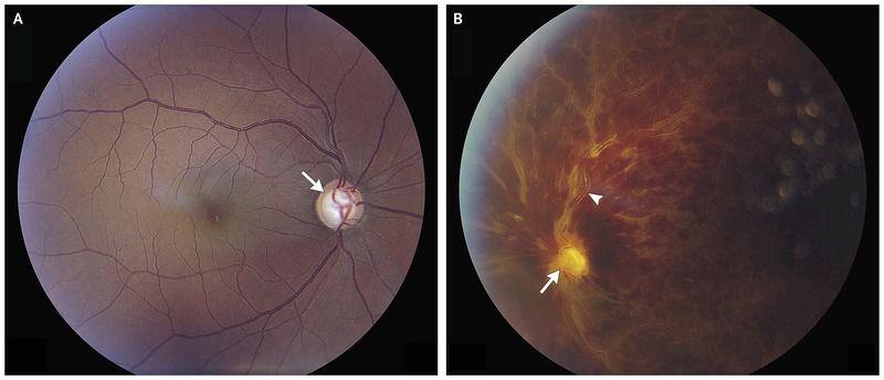 Central Retinal-Vein Occlusion