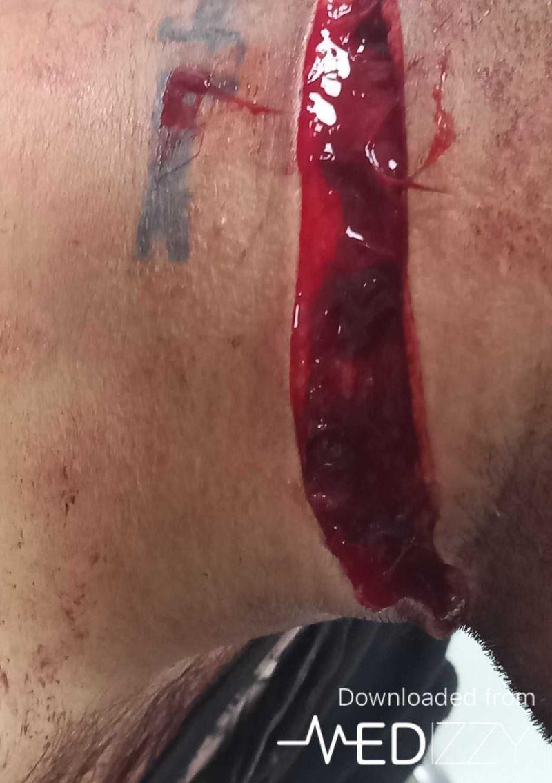 Knife trauma in the nick