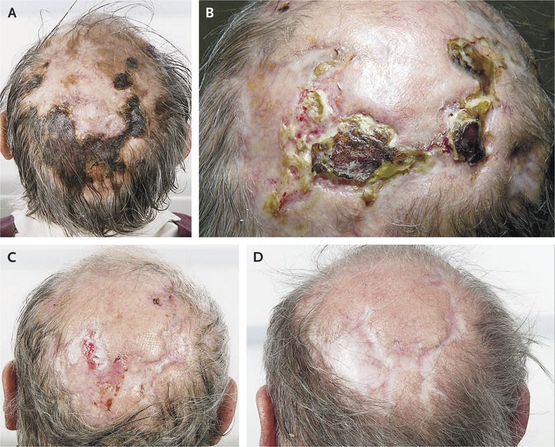 Scalp Necrosis Associated with Giant-Cell Arteritis