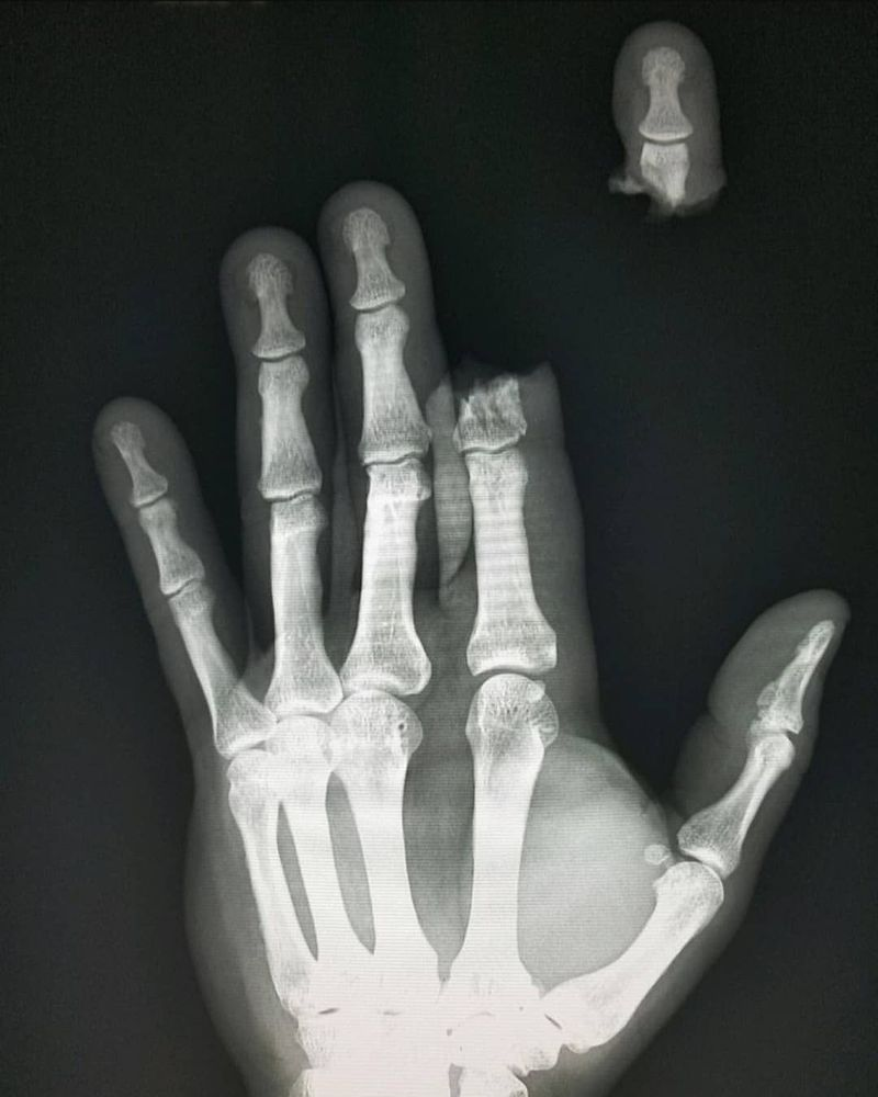 Hand x-ray showing complete second finger amputation after an accident using a powertool!