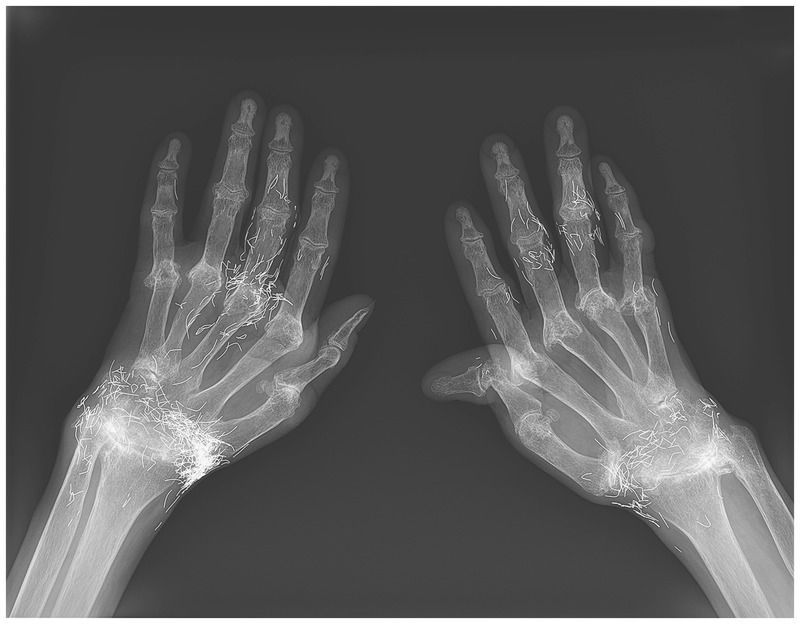 Gold Thread Acupuncture for Rheumatoid Arthritis