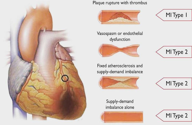Myocardial Infarction types