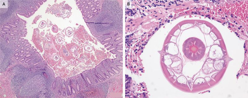 Appendiceal Pinworms