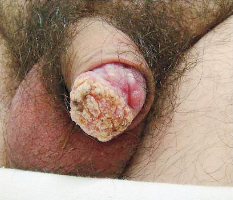 Squamous-Cell Carcinoma of the Penis with Human Papillomavirus