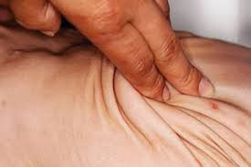 Elastoderma: A Rare Disorder of Skin