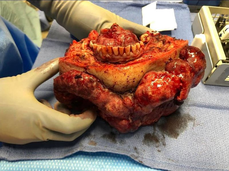 Massive tomor resection (squamous cell carcinoma) with mandibulectomy, neck dissection and laryngectomy!