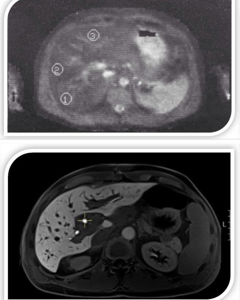 Early liver MRI scan from the 1986