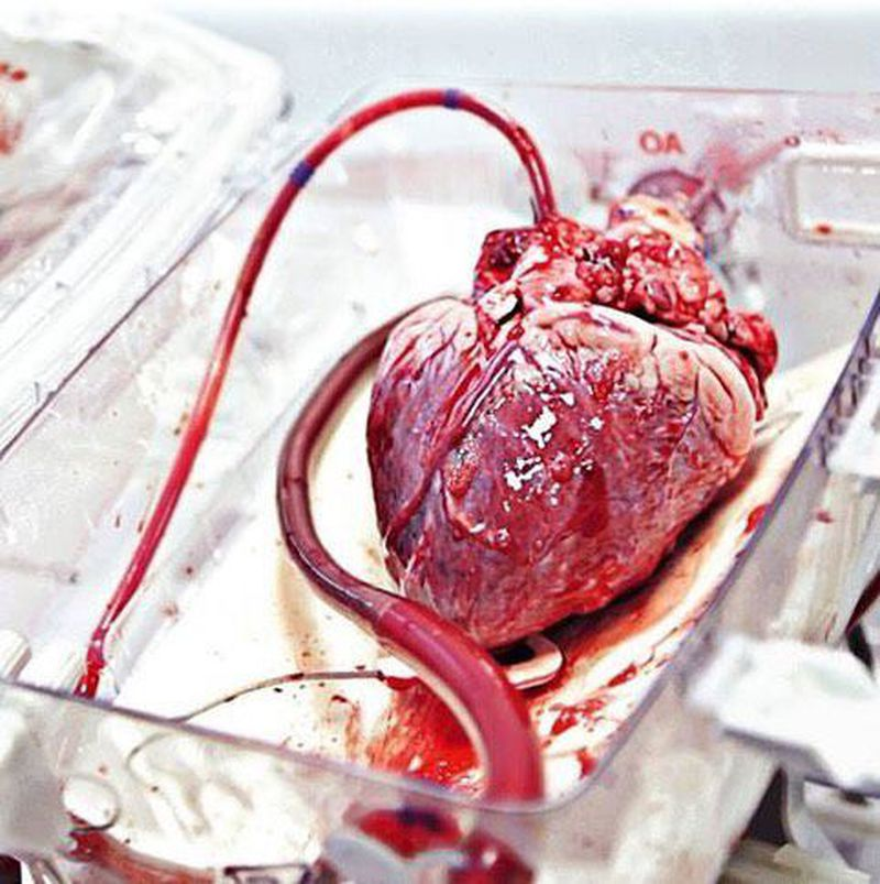 Human Heart, ready to be transplanted