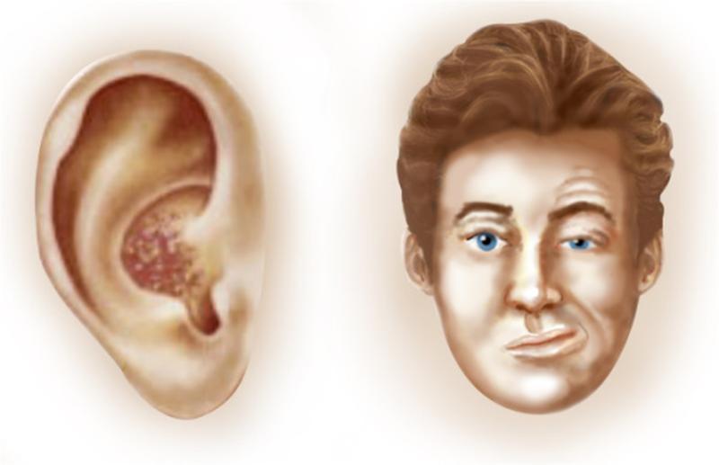 Ramsay Hunt Syndrome: A Rare Condition