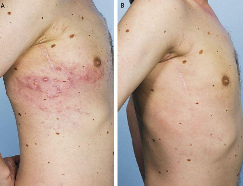 Zosteriform Metastases from Malignant Melanoma
