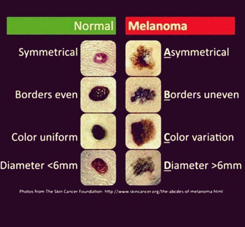 Normal Mole Vs Melanoma