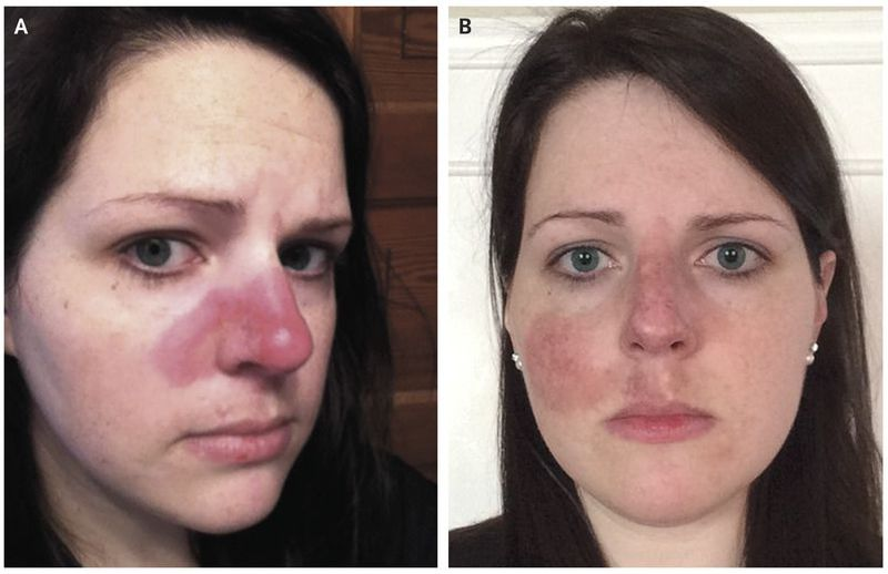"Cutaneous Lupus — ""The Pimple That Never Went Away"""