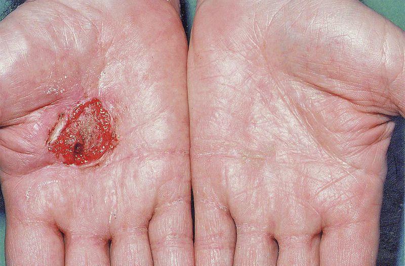 Palmar Squamous-Cell Carcinoma