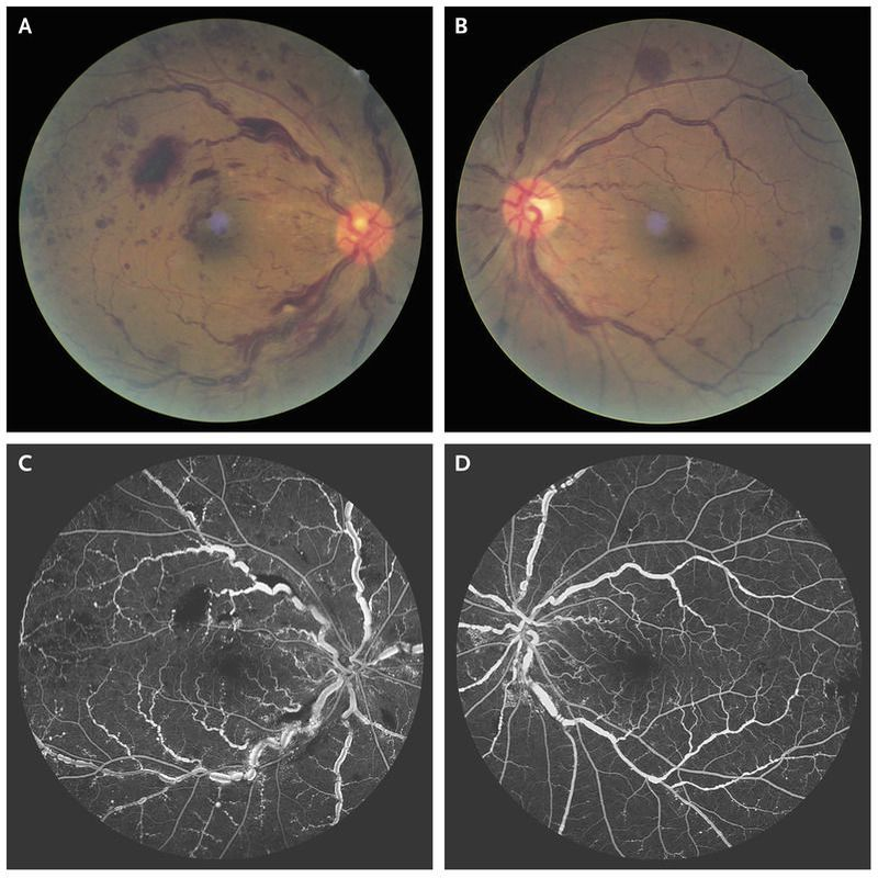 Hyperviscosity-Related Retinopathy in Waldenström's Macroglobulinemia