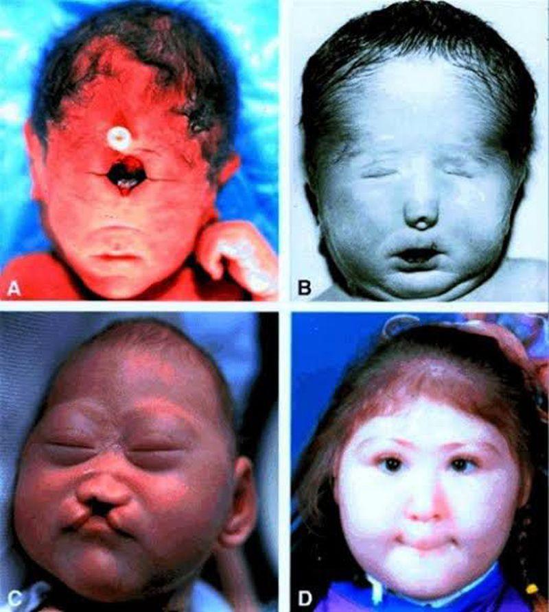 Nonsyndromic holoprosencephaly