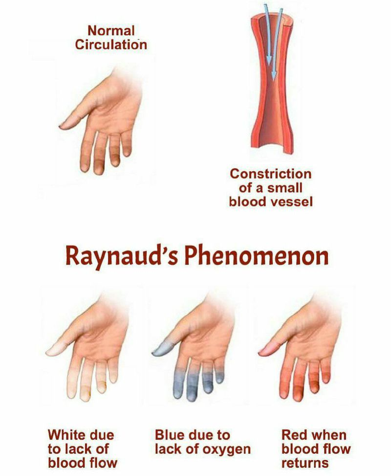 Raynaud's phenomenon (RP) is a disorder resulting in vasospasm, a particular series of discolorations of the fingers and/or the toes after exposure to changes in temperature (cold or hot) or emotional events. The three-phase color sequence (white to blue to red), most often upon exposure to cold temperature, is characteristic of Raynaud's phenomenon.✍